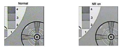 3ddnr , 2ddnr در دوربین مداربسته چیست؟
